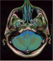 Brain MRI 293 17.png