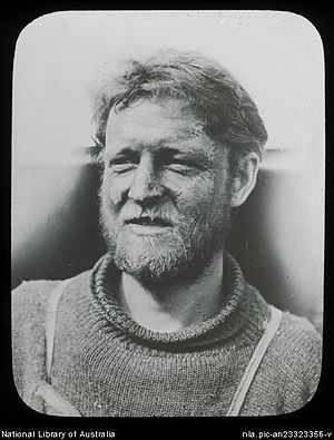 Cecil Madigan - Cecil Madigan's frostbitten face, Adelie Land (Australasian Antarctic Expedition, 1911-1914), by Frank Hurley.