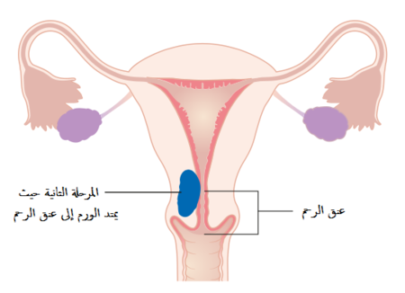 A diagram of stage II endometrial cancer