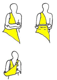 f18066f36b7 Écharpe (médecine) — Wikipédia