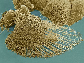 Immortalised cell line - Scanning electron micrograph of an apoptotic HeLa cell. Zeiss Merlin HR-SEM.