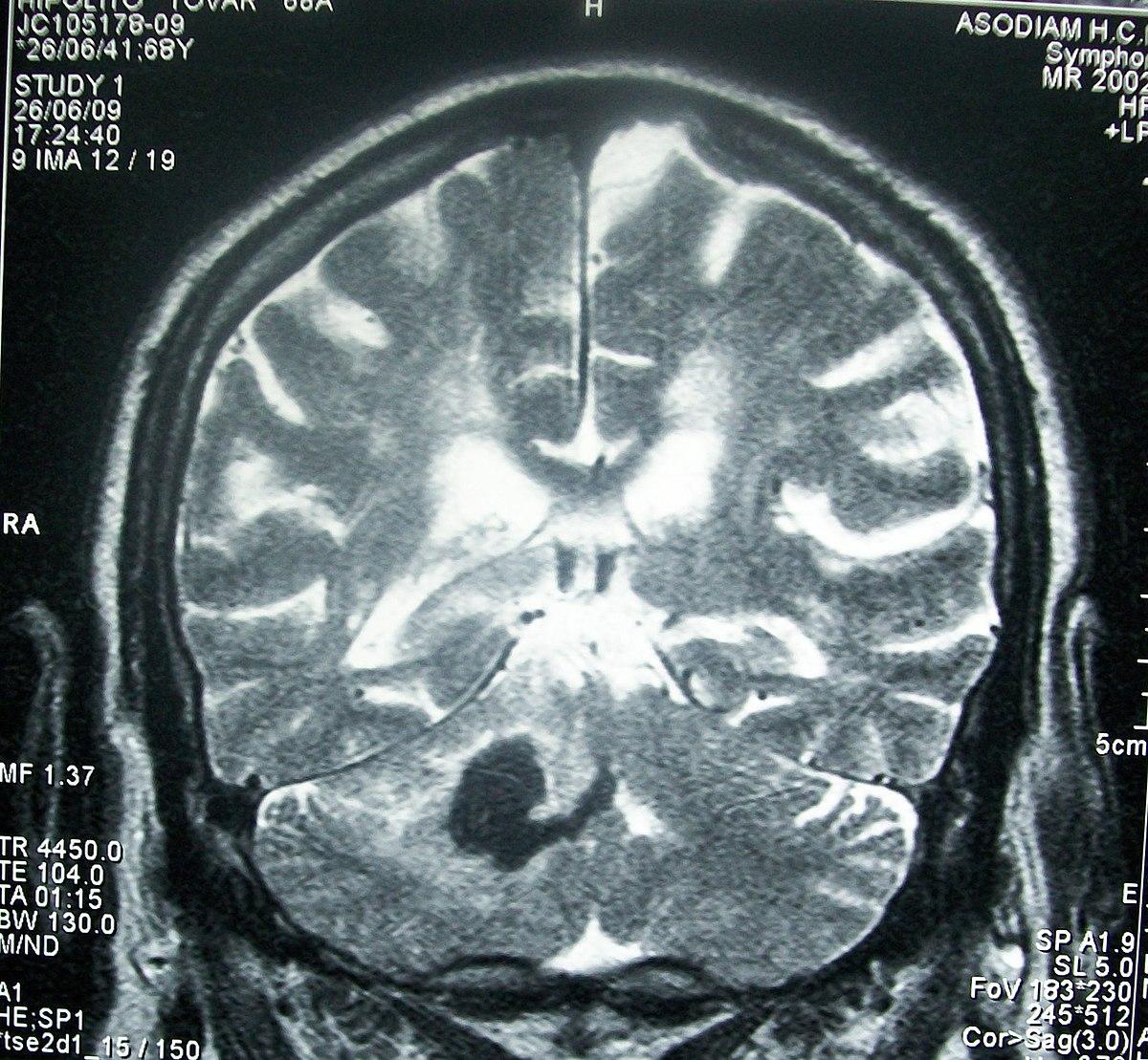 Significado de compresión cerebral