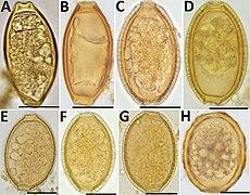 capillaria (eucoleus) boehmi eggs