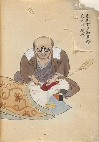 "Hanaoka Seishū - Image from ""Surgical Casebook"" (Kishitsu geryō zukan) by Hanaoka Seishu"