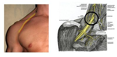 Brachial plexus block - Wikipedia