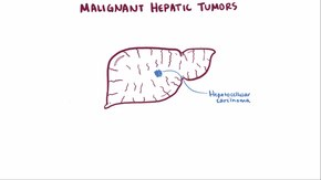 File:Malignant liver tumors video.webm
