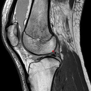 Posterior meniscofemoral ligament - Image: Meniscofemorale Baender MRT Haemarthros Pseudotear