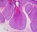Molluscum Contagiosum 2.jpg