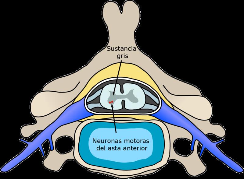 Zona afectada de la médula espinal en la poliomielitis paralizante