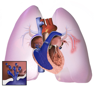 Pulmonary hypertension hypertension characterized by an increase of blood pressure in the pulmonary artery, pulmonary vein or pulmonary capillaries