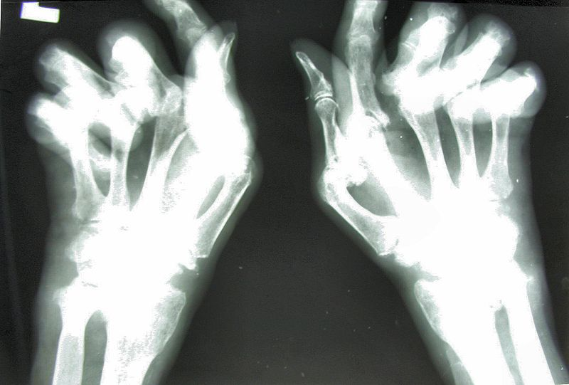 File:Reumatoidalne zapalenie stawow 01.jpg