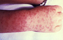 Rocky Mountain spotted fever PHIL 1962 lores.jpg
