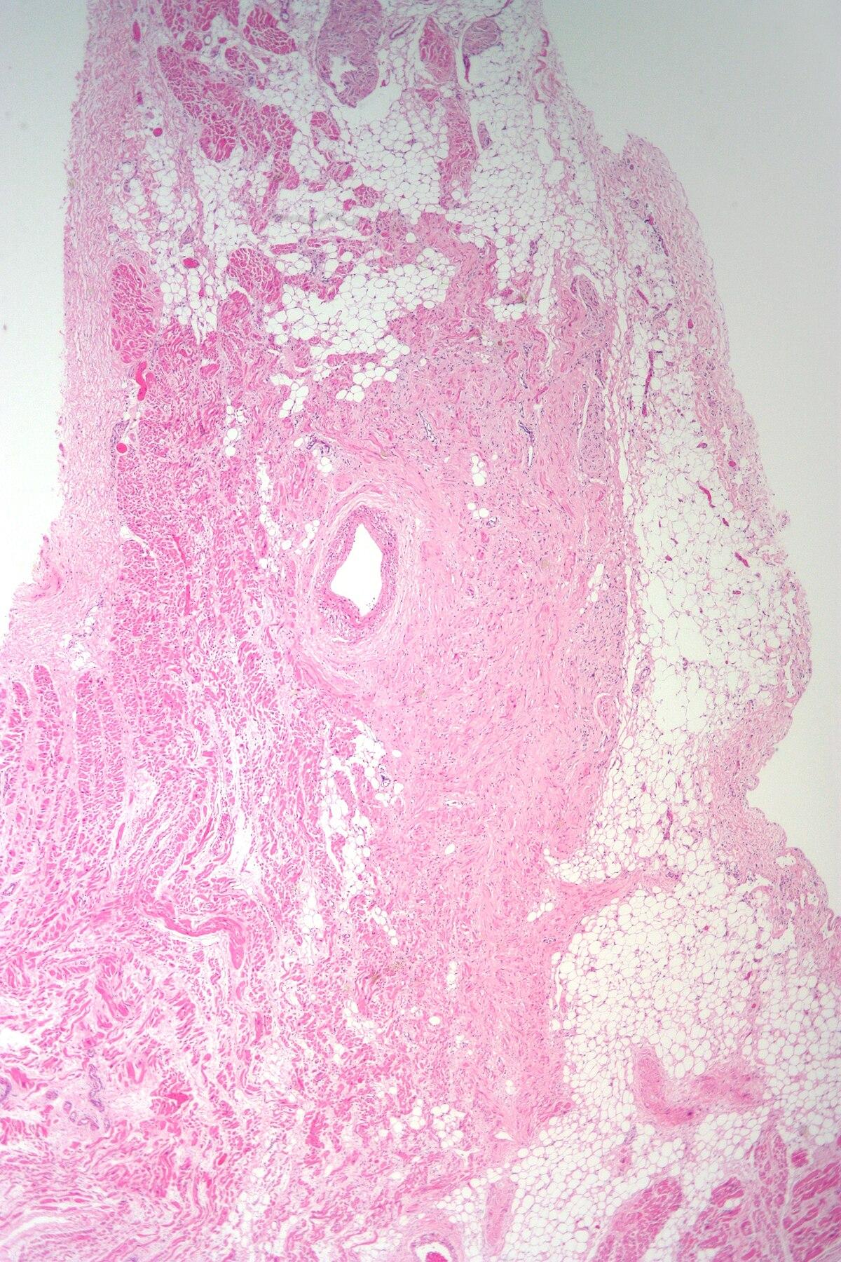 Come varicosity a fotografie incinte comincia