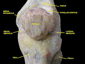 Medial epicondyle of the femur