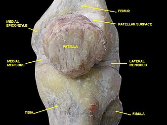 Medial epicondyle of the femur - Image: Slide 3wewe