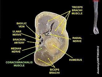 Coracobrachialis muscle - Image: Slide 5B