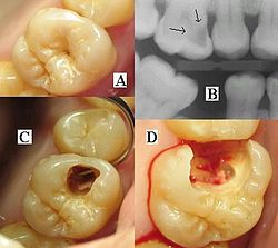 Montage of four pictures: three photographs and one radiograph of the same tooth.