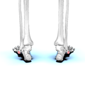 Tuberosity of fifth metatarsal bone 01 posterior view.png