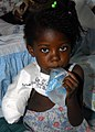 US Navy 100202-N-6214F-008 A Hatian girl recovers from an amputation at the Milot Hospital operated by the Crudem foundation.jpg