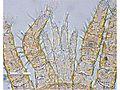 Varroa destructor female mouthparts.jpg