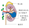 (zh)Diagram showing stage 3 kidney cancer CRUK 192.png