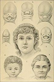 Desarrollo del rostro humano, porHaeckel.