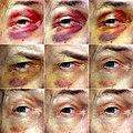 Black Eye 01.jpg