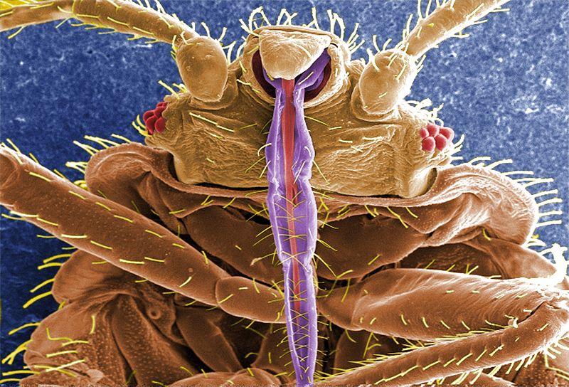 Microscopic bed bugs - photo#16
