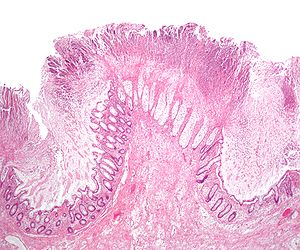 Micrograph of a colonic pseudomembrane in pseu...