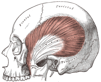 Temporal muscle - The temporalis; the zygomatic arch and masseter have been removed.