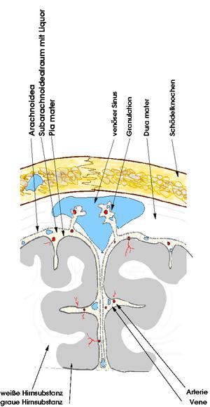Subarachnoidalblutung – Wikipedia