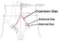 Iliac artery bifurcation.PNG