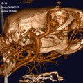 File:In-Vivo-Quantitative-Microcomputed-Tomographic-Analysis-of-Vasculature-and-Organs-in-a-Normal-and-pone.0150085.s006.ogv