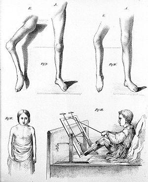J. von Heine, Poliomyelitis, 19th Century