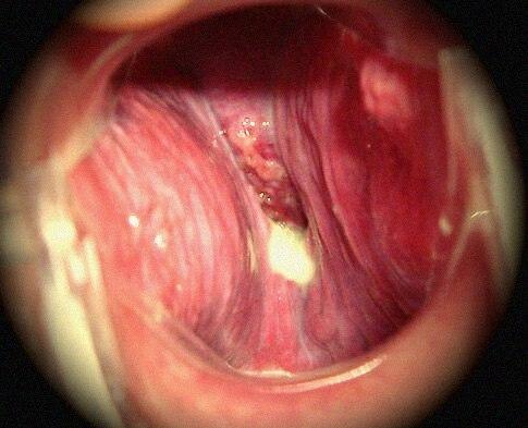Larynx endo 3