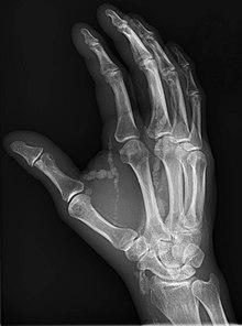 Tumoral calcinosis - Wikipedia