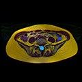 Pelvic MRI 06 26.jpg