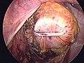 Stapler anastomosis of sigma (laparoscopic) 2.JPG