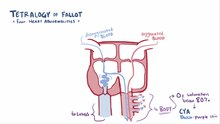 ملف:Tetralogy of fallot video.webm