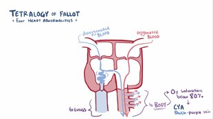 Archivo:Tetralogy of fallot video.webm