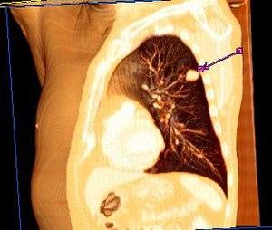 carcinoma pavimento celular esofago