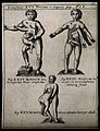 Three human figures, each with superfluous body parts growin Wellcome V0007398.jpg