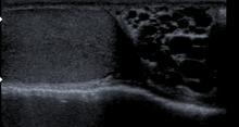 Varicocele, immagine ecografica. Si noti l'espansione e la tortuosità del plesso pampiniforme al di sopra del didimo.