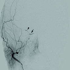 1471-2415-12-28-1Cerebral angiogram.jpg