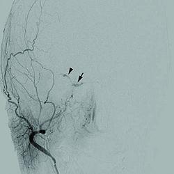 1471-2415-12-28-1Cerebral angiogram.jpg