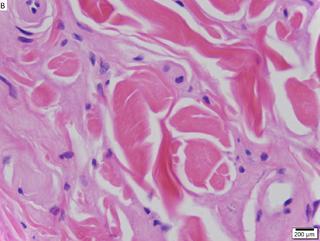 Urbach–Wiethe disease Rare recessive genetic disorder