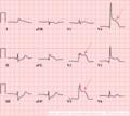 AMI anterior (CardioNetworks ECGpedia).png