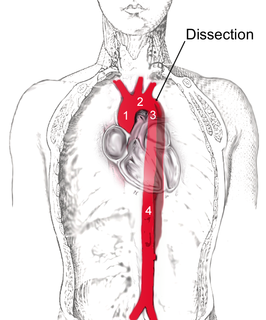 Aortic dissection injury to the innermost layer of the aorta allows blood to flow between the layers of the aortic wall, forcing the layers apart