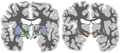 Basal-ganglia-coronal-sections.png