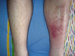 definition of cellulitis